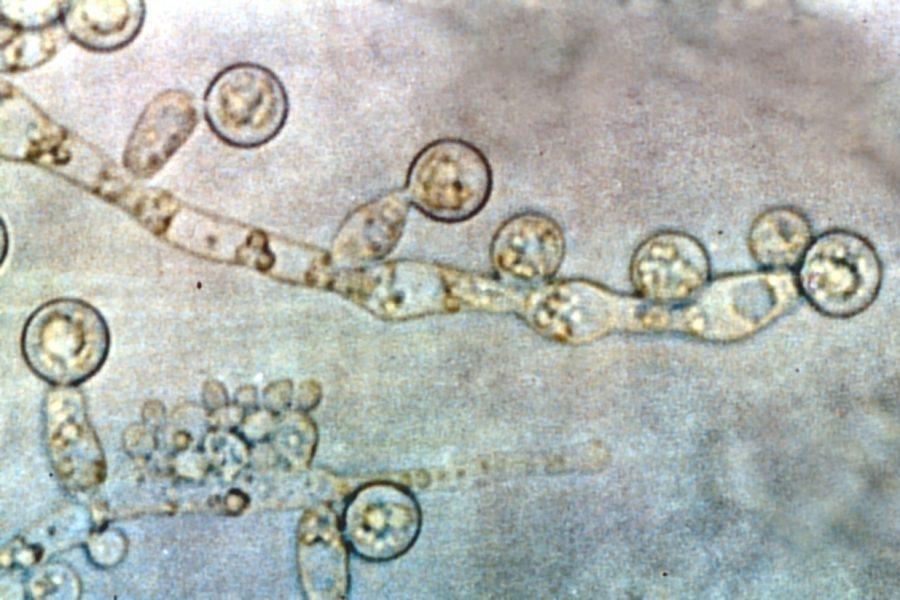 бластоспоры и нити мицелия