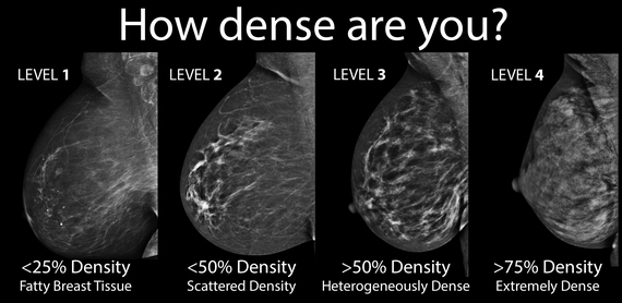 What are heterogeneously dense breasts